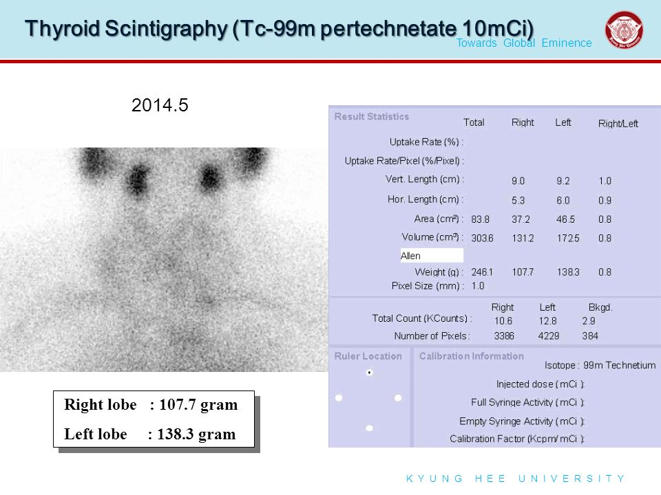 Towards Global Eminence K Y U N G H E E U N I V E R S I T Y Thyroid Scintigraphy (Tc-99m pertechnetate 10mCi) Right lobe : 107.7 gram Left lobe : 138.3 gram Right lobe : 107.7 gram Left lobe : 138.3 gram 2014.5