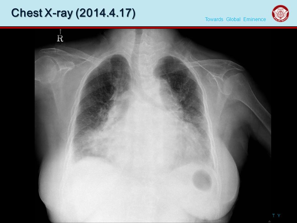 Towards Global Eminence K Y U N G H E E U N I V E R S I T Y Chest X-ray (2014.4.17) │8│