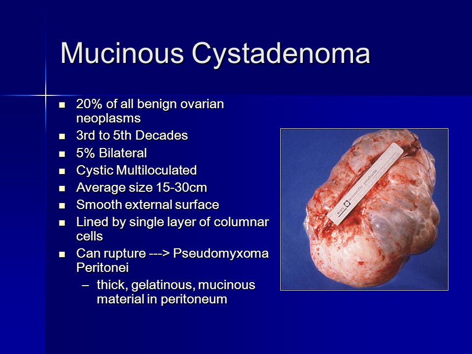 Mucinous Cystadenoma 20% of all benign ovarian neoplasms 20% of all benign ovarian neoplasms 3rd to 5th Decades 3rd to 5th Decades 5% Bilateral 5% Bilateral Cystic Multiloculated Cystic Multiloculated Average size 15-30cm Average size 15-30cm Smooth external surface Smooth external surface Lined by single layer of columnar cells Lined by single layer of columnar cells Can rupture ---> Pseudomyxoma Peritonei Can rupture ---> Pseudomyxoma Peritonei –thick, gelatinous, mucinous material in peritoneum