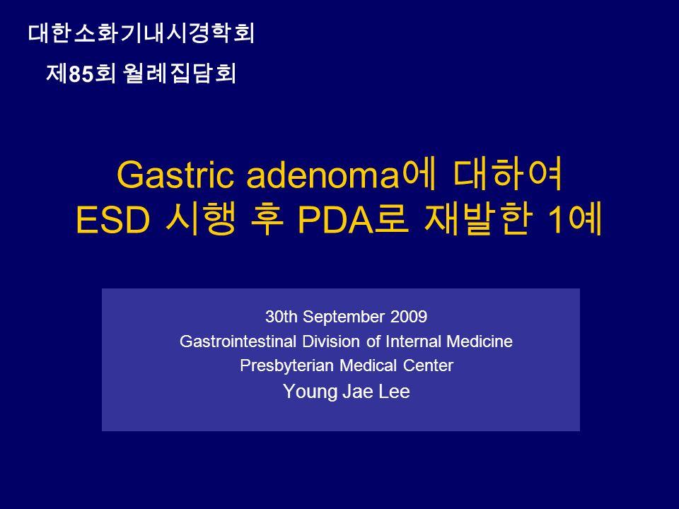 Gastric adenoma 에 대하여 ESD 시행 후 PDA 로 재발한 1 예 30th September 2009 Gastrointestinal Division of Internal Medicine Presbyterian Medical Center Young Jae Lee 대한소화기내시경학회 제 85 회 월례집담회