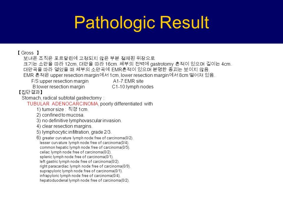 Pathologic Result 【 Gross 】 보내온 조직은 포르말린에 고정되지 않은 부분 절제된 위장으로 크기는 소만을 따라 12cm, 대만을 따라 16cm.