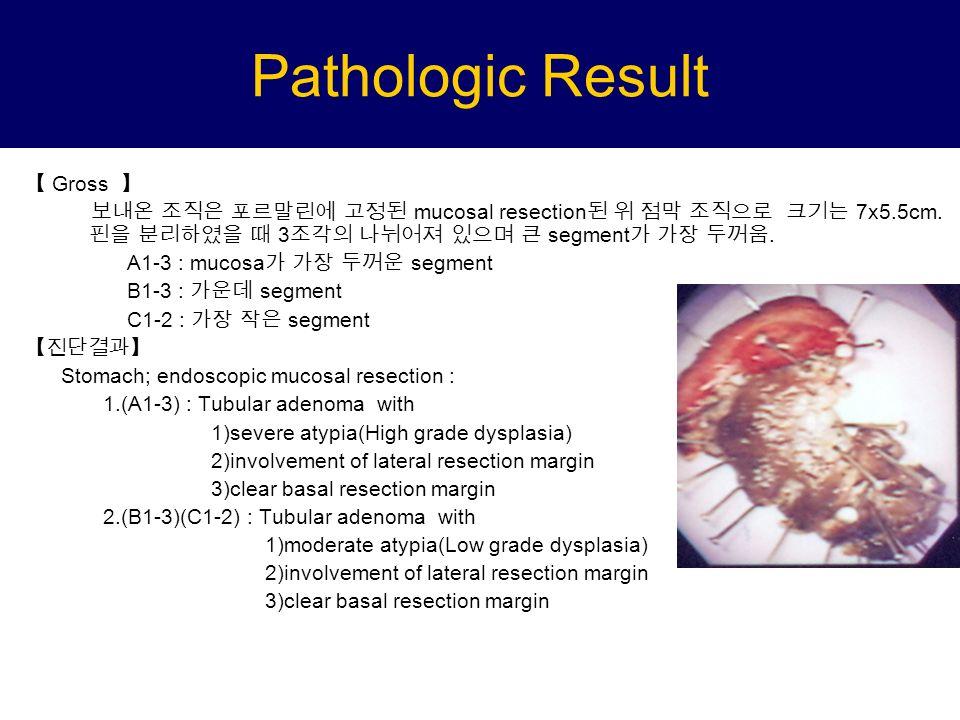 Pathologic Result 【 Gross 】 보내온 조직은 포르말린에 고정된 mucosal resection 된 위 점막 조직으로 크기는 7x5.5cm.
