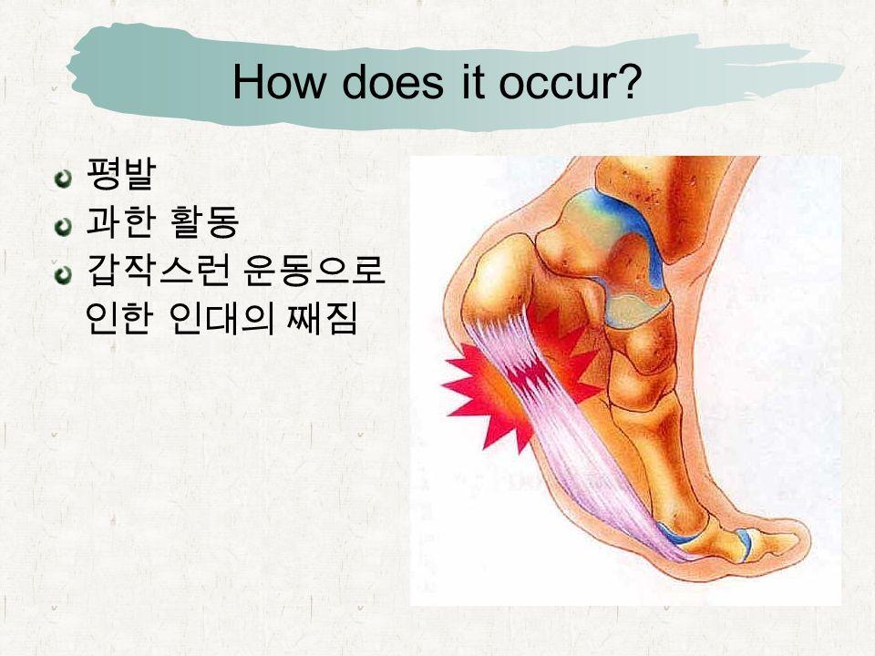 How does it occur 평발 과한 활동 갑작스런 운동으로 인한 인대의 째짐