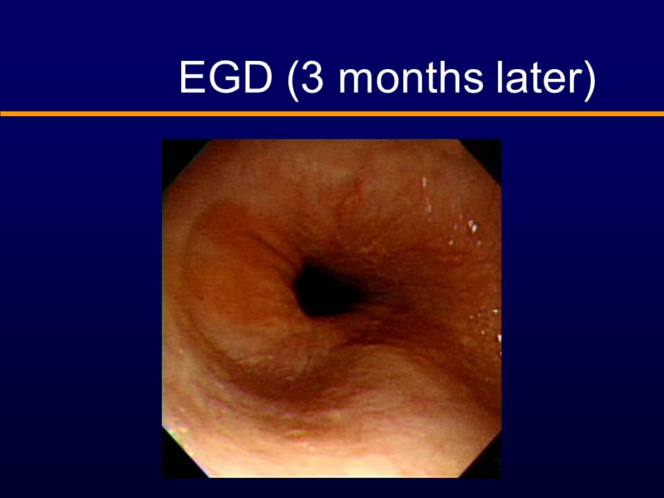 EGD (3 months later)