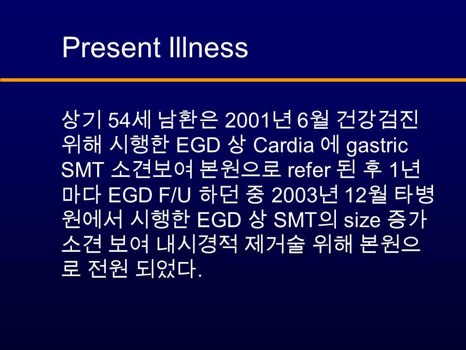 Present Illness 상기 54 세 남환은 2001 년 6 월 건강검진 위해 시행한 EGD 상 Cardia 에 gastric SMT 소견보여 본원으로 refer 된 후 1 년 마다 EGD F/U 하던 중 2003 년 12 월 타병 원에서 시행한 EGD 상 SMT 의 size 증가 소견 보여 내시경적 제거술 위해 본원으 로 전원 되었다.