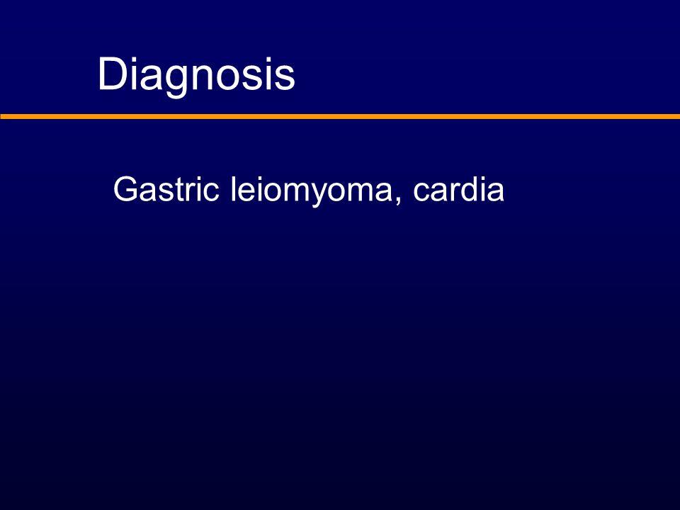 Diagnosis Gastric leiomyoma, cardia
