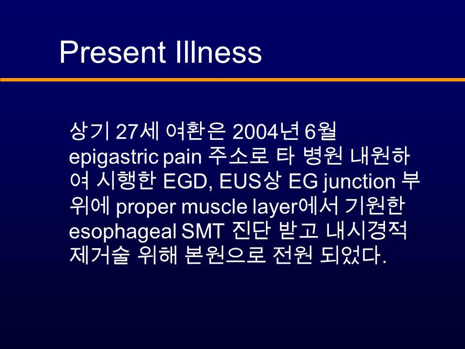 Present Illness 상기 27 세 여환은 2004 년 6 월 epigastric pain 주소로 타 병원 내원하 여 시행한 EGD, EUS 상 EG junction 부 위에 proper muscle layer 에서 기원한 esophageal SMT 진단 받고 내시경적 제거술 위해 본원으로 전원 되었다.