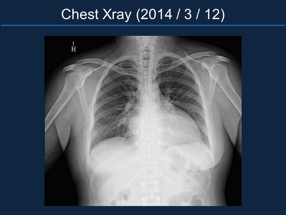 Chest Xray (2014 / 3 / 12)