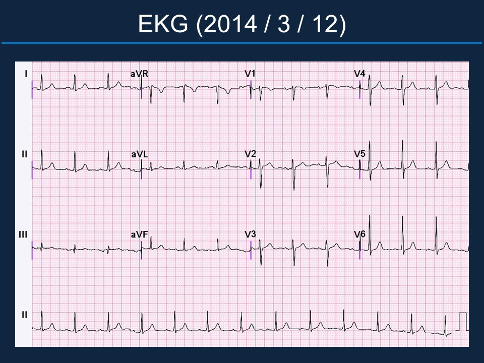 EKG (2014 / 3 / 12)