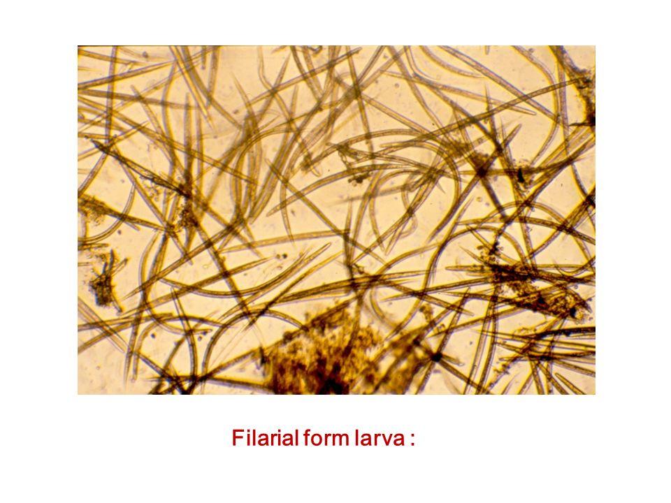 Filarial form larva :