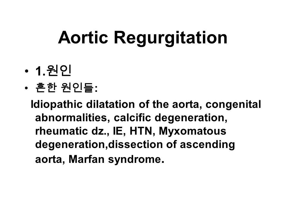 Aortic Regurgitation 1.