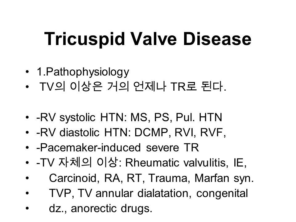 Tricuspid Valve Disease 1.Pathophysiology TV 의 이상은 거의 언제나 TR 로 된다.