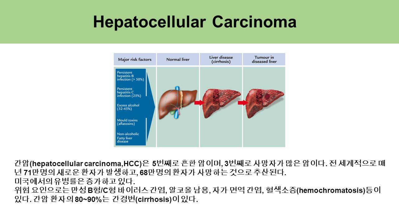 Hepatocellular Carcinoma 간암 (hepatocellular carcinoma,HCC) 은 5 번째로 흔한 암이며, 3 번째로 사망자가 많은 암이다.