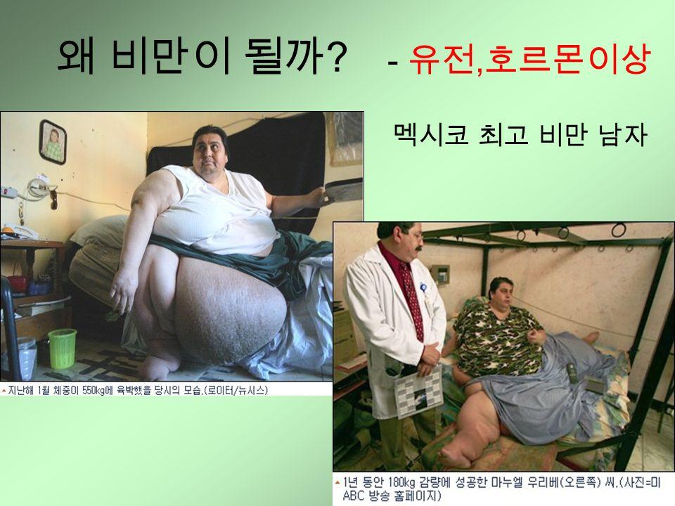 - 유전, 호르몬이상 멕시코 최고 비만 남자 왜 비만이 될까