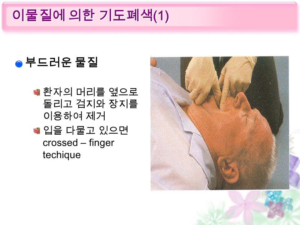 부드러운 물질 환자의 머리를 옆으로 돌리고 검지와 장지를 이용하여 제거 입을 다물고 있으면 crossed – finger techique 이물질에 의한 기도폐색 (1)