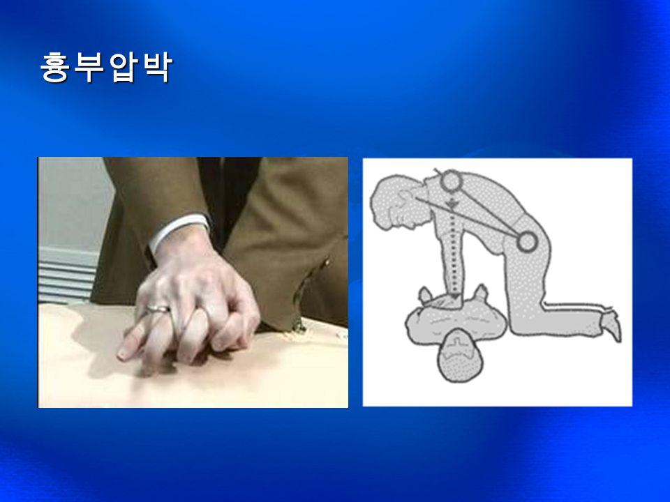 흉부 압박 유의사항 수직으로 누르도록 한다 가슴에서 손을 떼지 않는다 실시방법 흉부를 5~6cm 길이로 30 회 압박한다 5-6cm