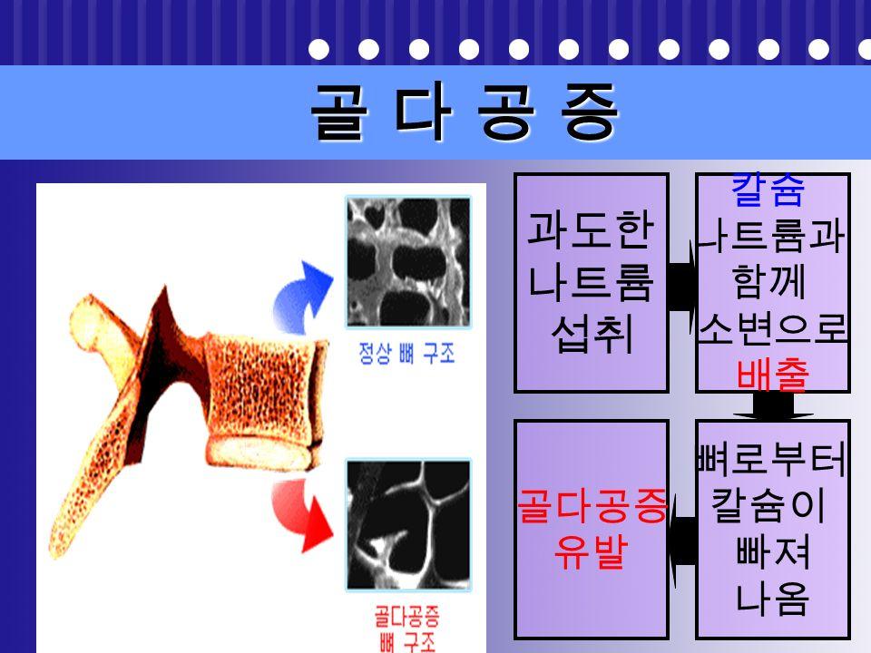 신장질환 신장질환 정상신장 많은 나트륨 : 수분 배설능력 감소 신장 부담 신장 질환 발생
