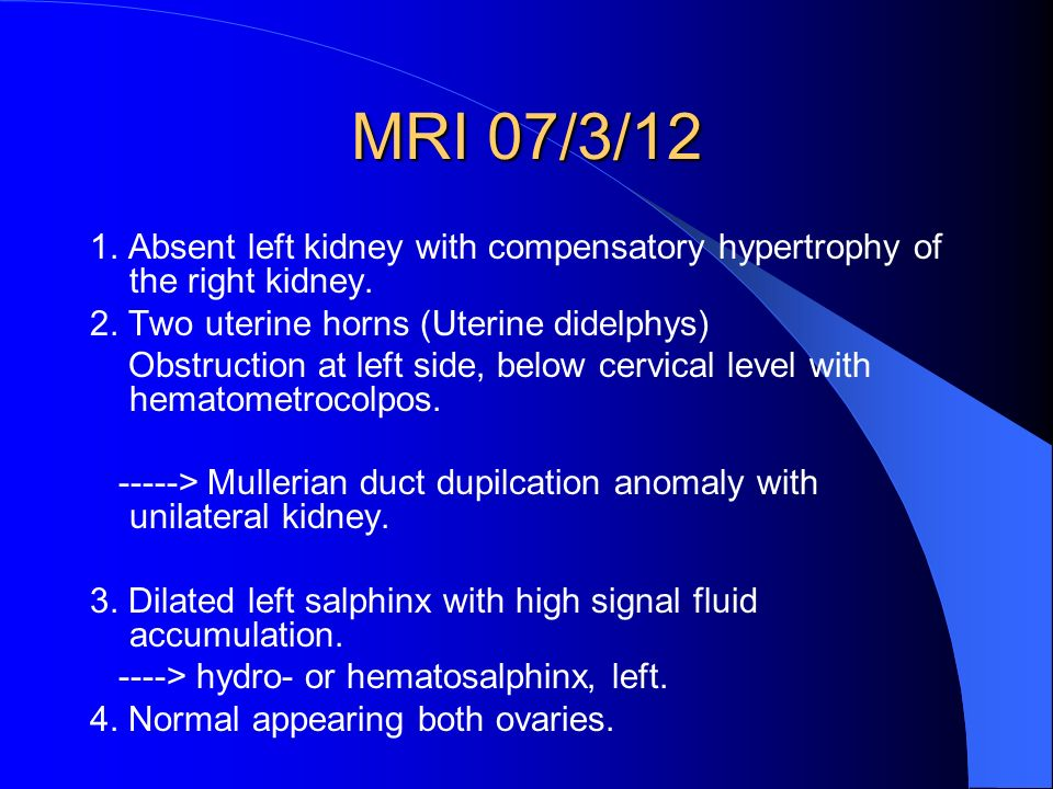 1. Absent left kidney with compensatory hypertrophy of the right kidney.