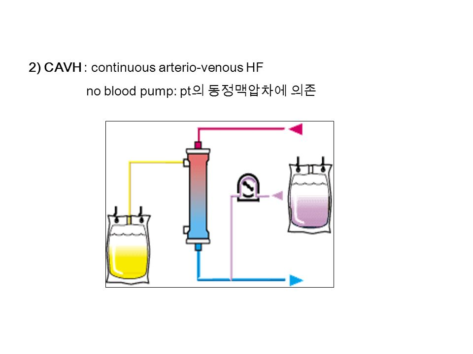 2) CAVH : continuous arterio-venous HF no blood pump: pt 의 동정맥압차에 의존 CRRT(Continuous Renal Replacement Therapy) 의 종류