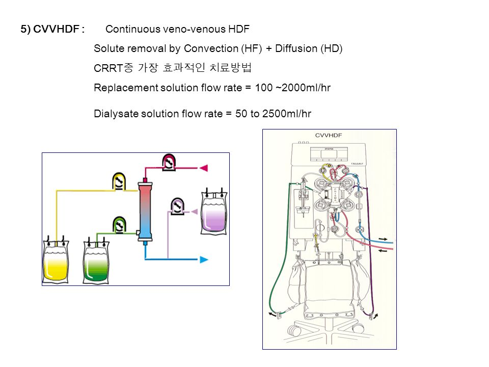 5) CVVHDF : Continuous veno-venous HDF Solute removal by Convection (HF) + Diffusion (HD) CRRT 중 가장 효과적인 치료방법 Replacement solution flow rate = 100 ~2000ml/hr Dialysate solution flow rate = 50 to 2500ml/hr